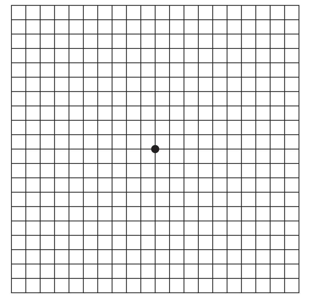 This is a picture of Transformative Printable Amsler Grid